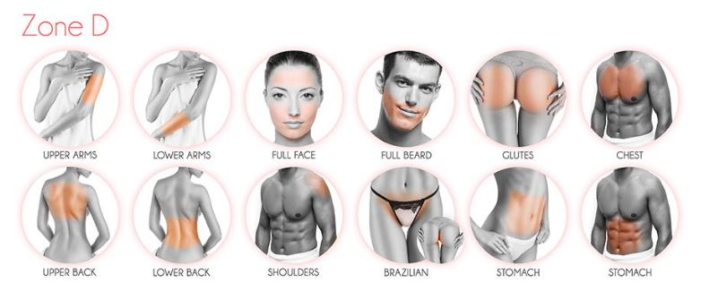 face zones