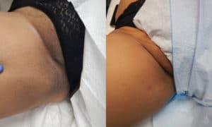 intimate skin bleaching