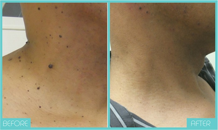 Skin Tags Removal Tampa | Before and After | Skintellect