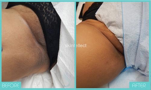Intimate Skin Bleaching | Inner Thighs | Skintellect