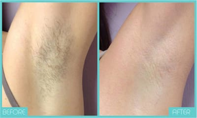 Laser Hair Removal | Before & After | Skintellect
