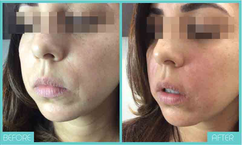 Fillers Before and After | Skintellect