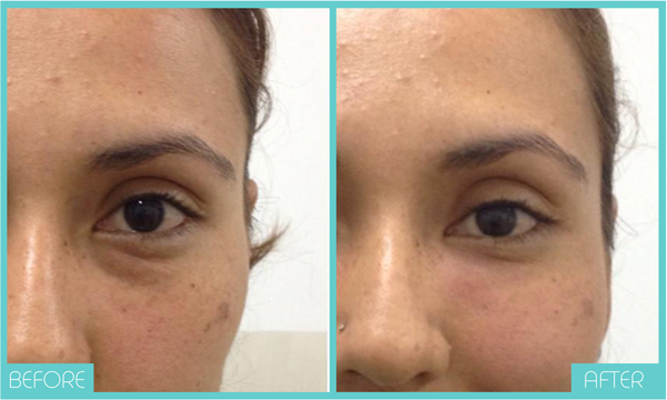 Carboxytherapy Before and After   Skintellect