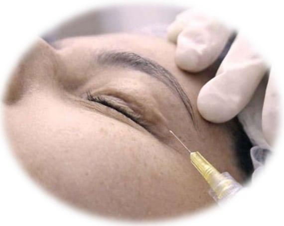Carboxytherapy   Dark Eyes   Skintellect