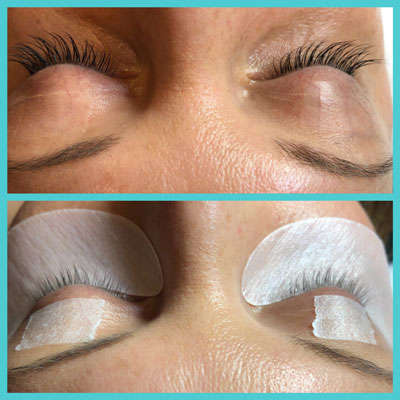 Eyelash Extensions Before and After | Skintellect
