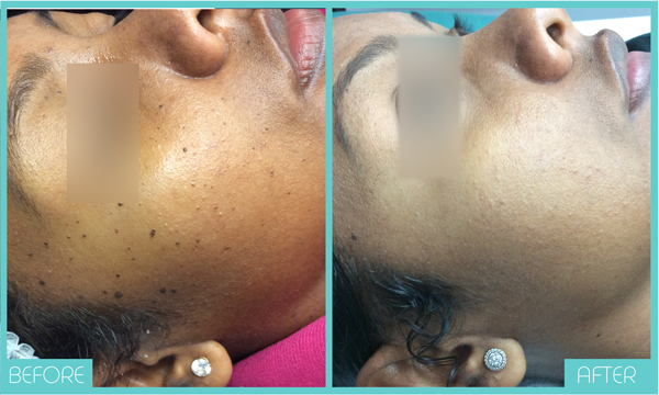 Skin Tags Face | Before and After | Skintellect