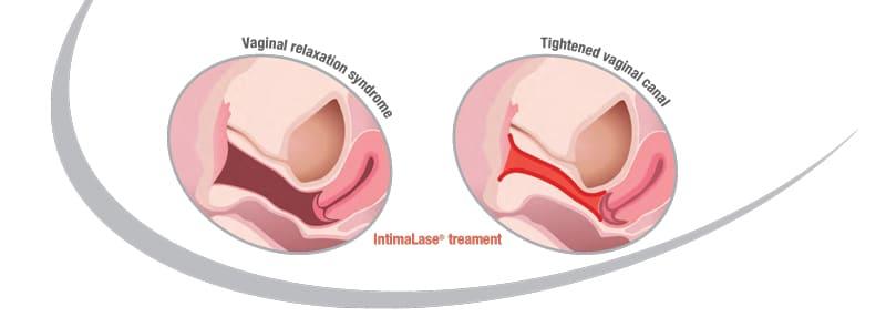 IntimaLase B&A | Skintellect
