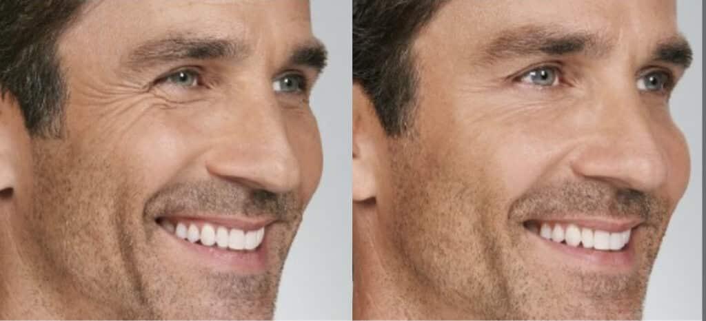 B&A Botox Male