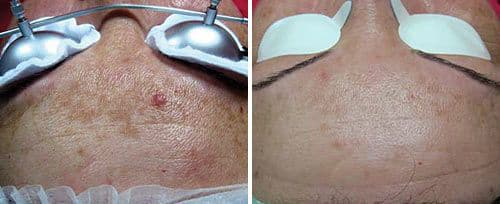 Melasma Before and After | Skintellect